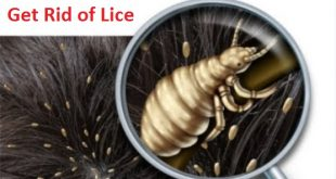 Get Rid of Lice Fast