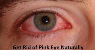 Get Rid of Pink Eye Naturally