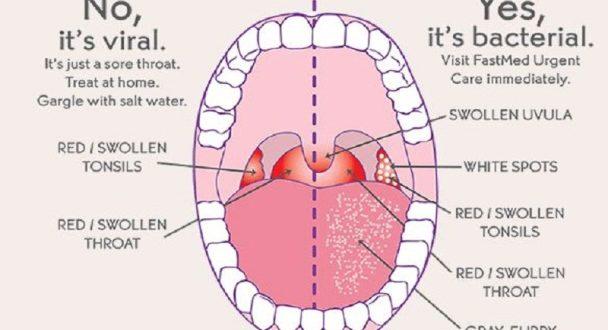 How Do You Get Strep Throat