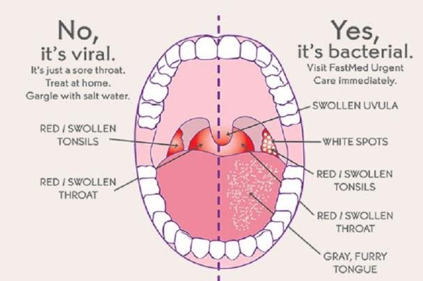how do you get strep throat?, Skeleton