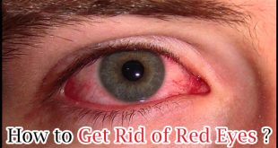 How to Get Rid of Red Eyes
