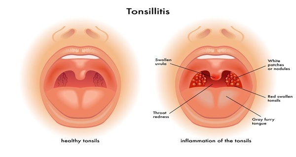How to Get Rid of Sore Tonsils