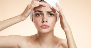 Get Rid of a Pimple