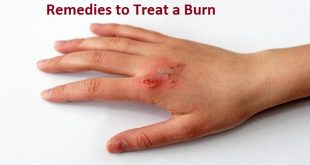 Remedies to Treat a Burn