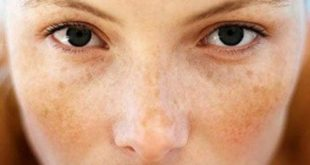 how to get rid of dark spots