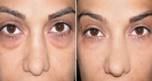 Get Rid of Bags Under Your Eyes