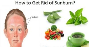 Get rid of sunburn