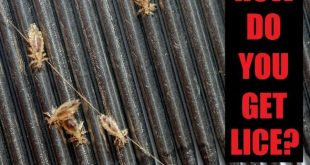 how do you get lice