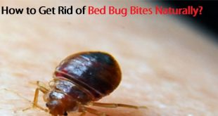 How to Get Rid of Bed Bug Bites Naturally?