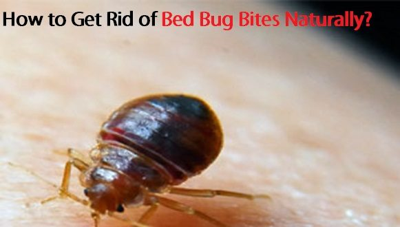 How to get rid of bed bug bites naturally for How do i prevent bed bugs