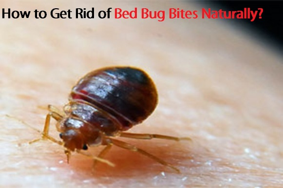 Permalink to How To Treat Bed Bugs
