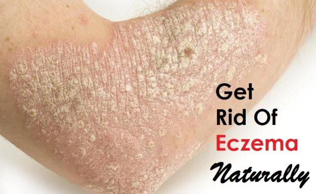 Foods That Help Get Rid Of Eczema