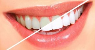 whiten your teeth