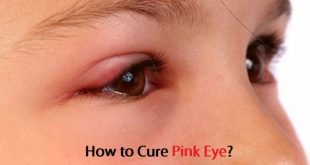 How to Cure Pink Eye?