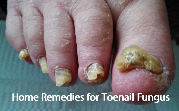 Remedies for Toenail Fungus
