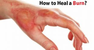 How to Heal a Burn?