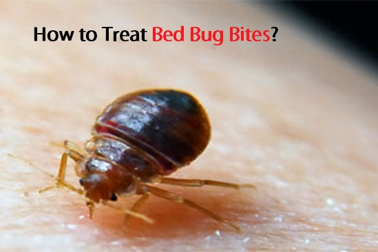 How to treat bed bug bites How to remove bed bugs from couch