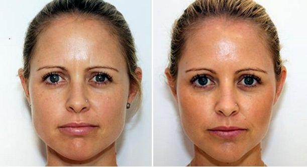 how to get rid of fat face