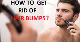 How to get rid of hair bumps