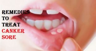 get rid of canker sore