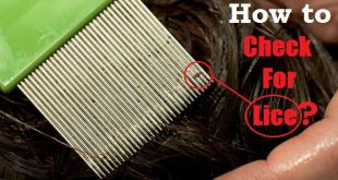 how to check for lice