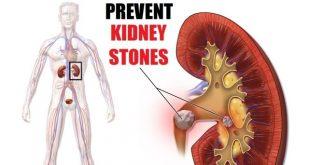 how to prevent kidney stones