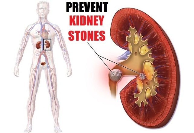 Natural Ways To Prevent And Get Rid Of Kidney Stones
