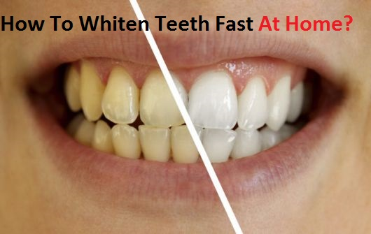How to whiten teeth fast at home - Baking soda the powder that works wonders at home ...