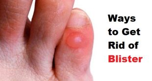 get rid of a blister