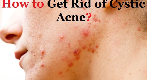 How to get rid of inflammation from acne