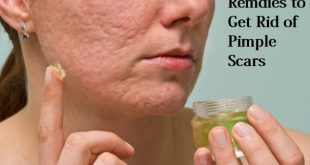 get rid of pimple scars